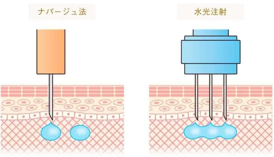 水光注射ナパージュ法とマシンの違い