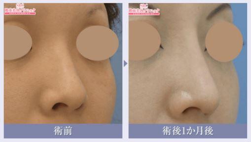 鼻整形ビフォーアフター