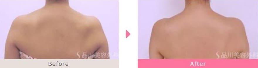品川美容外科肩ボトックス症例写真